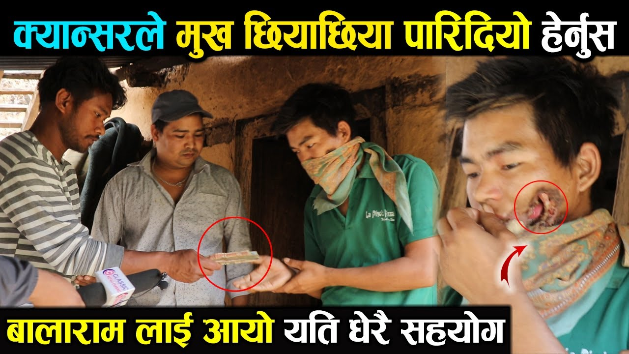 Balaram, who has been raising a family by driving, got cancer. Rolpa News